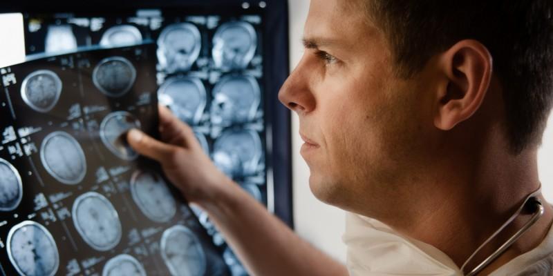 Arzt betrachtet CT-Aufnahmen des Gehirns