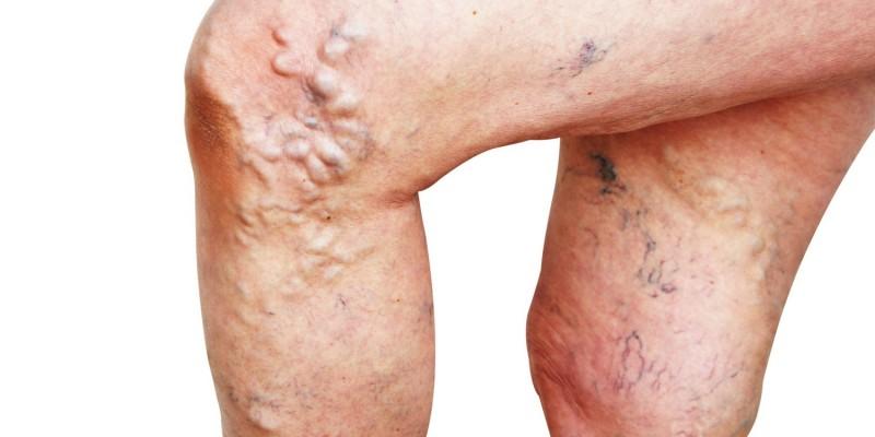 Krampfadern in den Beinen