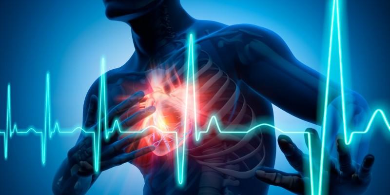 Ein Herzinfarkt äußert sich durch verschiedene Symptome