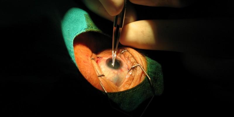 Augenoperation bei einem Grauen Star