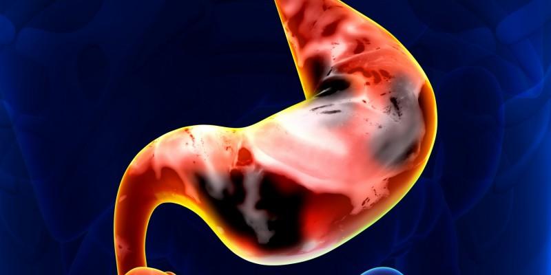Bei chronischen Magengeschwüren besteht ein erhöhtes Magenkrebs-Risiko