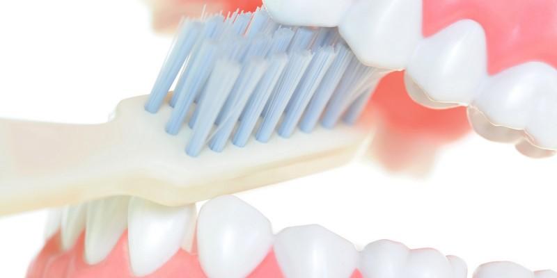 Bei einer Parodontose ist der Zahnhalteapparat geschädigt