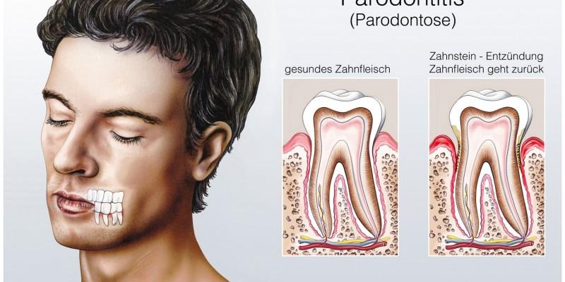 Das Zahnfleisch geht sichtbar zurück