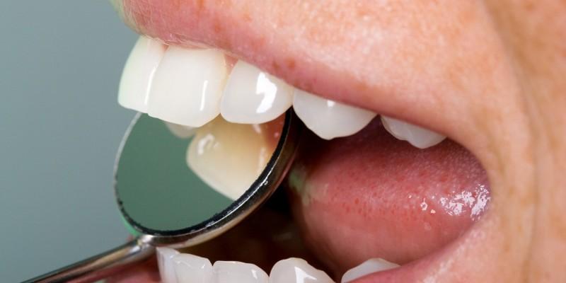 Kontrolle der Zähne und des Zahnfleisches