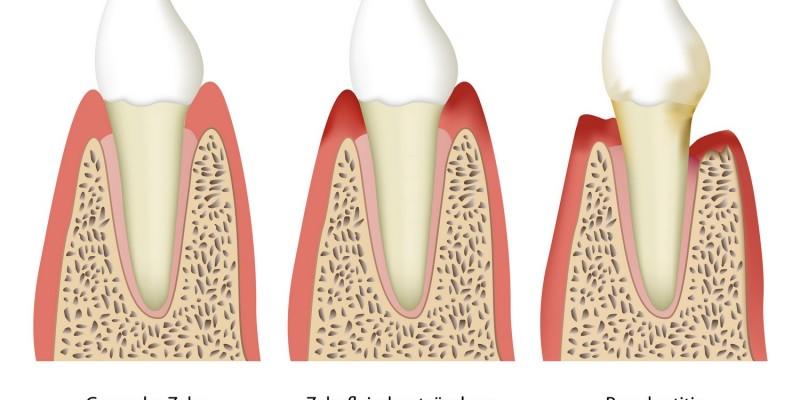 Aus einer Zahnfleischentzündung entsteht eine Parodontitis