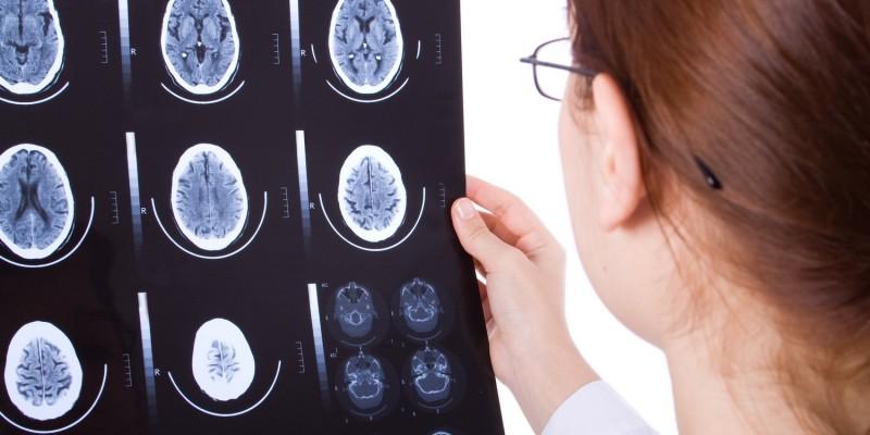 Röntgenaufnahmen des Gehirns