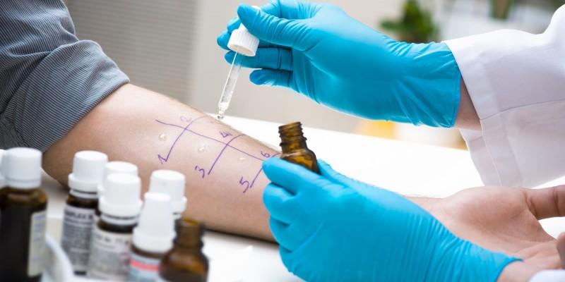 Allergietest beim Arzt
