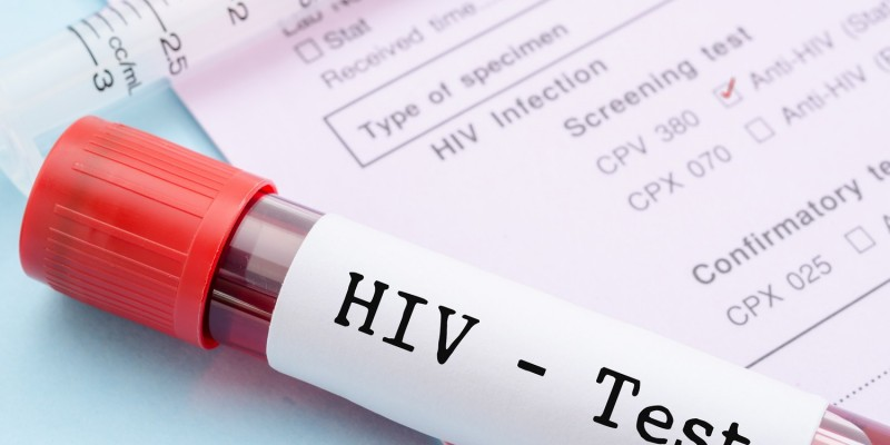 Positiver HIV-Test