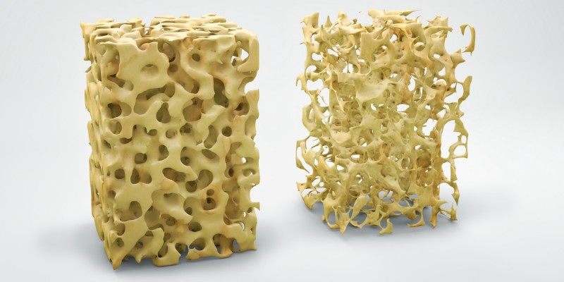 Die Knochenstruktur verändert sich sichtbar