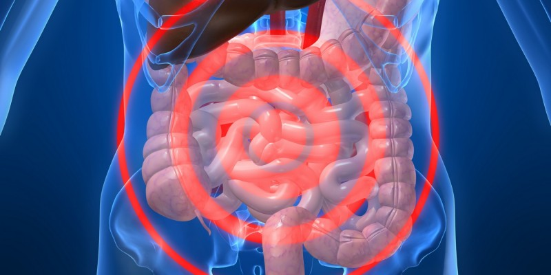 Ein Leistenbruch kann mit starken Schmerzen verbunden sein