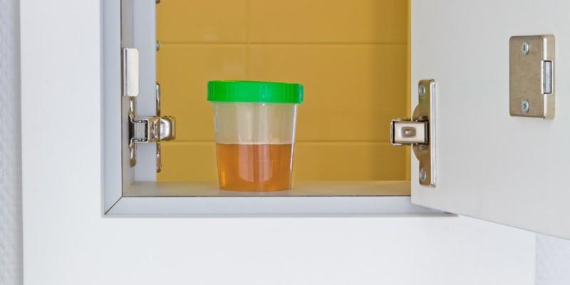 Urinprobe zur Harnuntersuchung