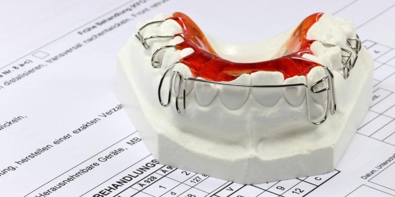 Zahnspange auf Gipsabdruck