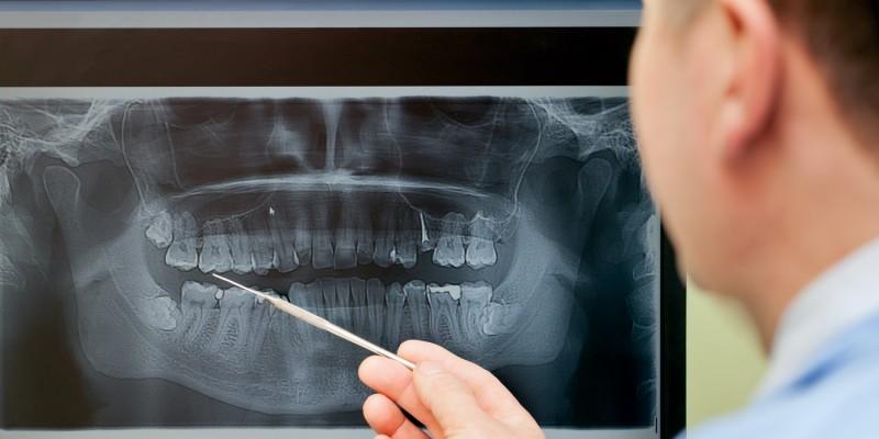 Zahn-Kieferfehlstellungen treten sehr häufig auf
