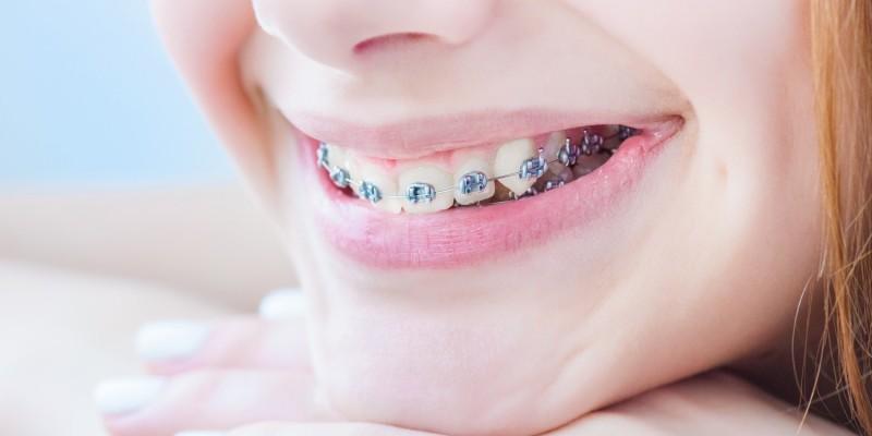 Mädchen mit Brackets auf den Zähnen
