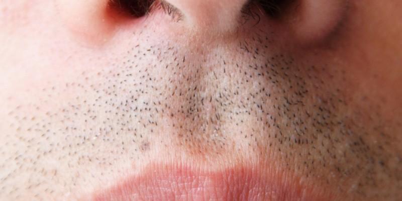Besonders häufig sind Männer von Nasenpolypen betroffen