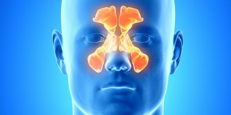 Die Nasennebenhöhlen können sich entzünden