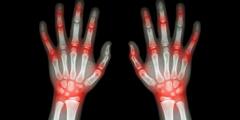 Röntgenbild erkrankter Finger- und Handgelenke