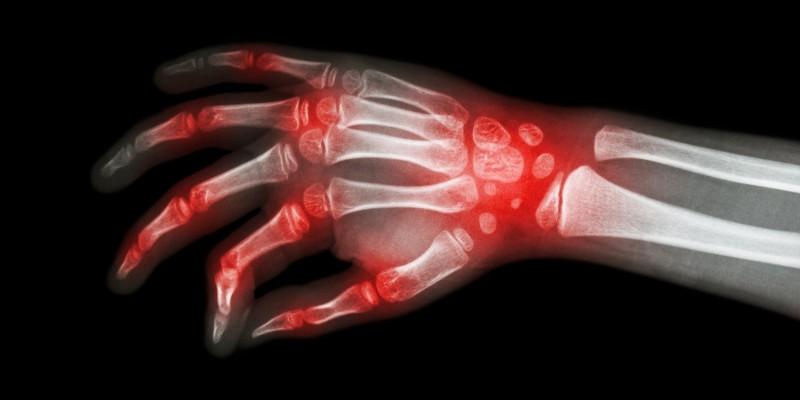 Röntgenbild einer von Gicht betroffenen Hand