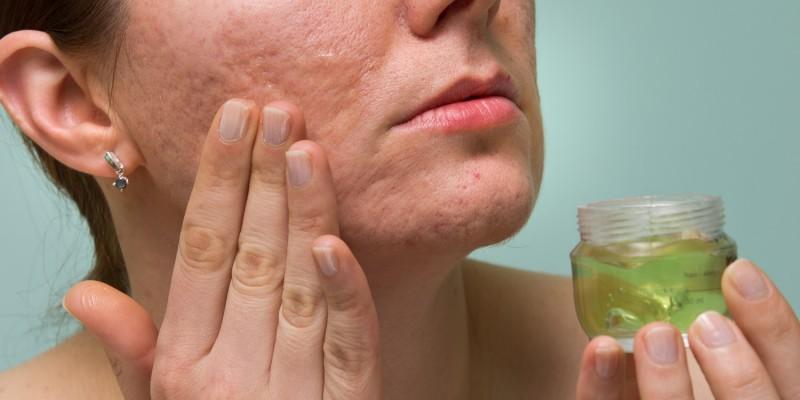 Narbenpflege im Gesicht