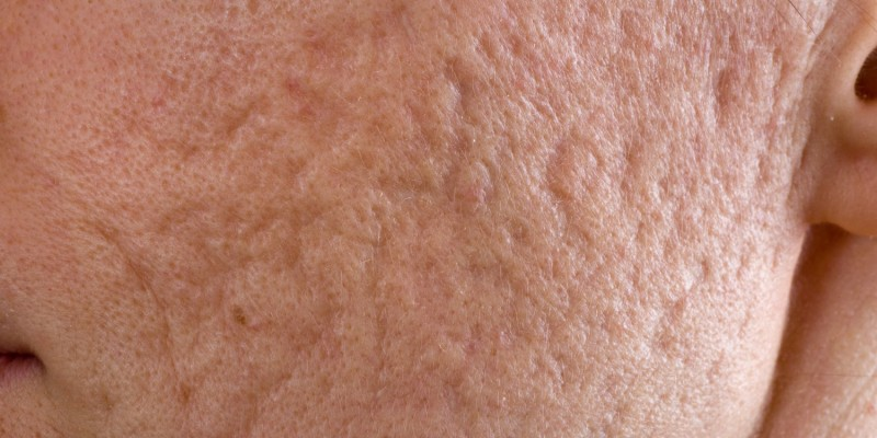 Aknenarben im Gesicht