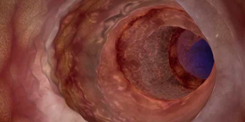 Darmschleimhaut bei Morbus Crohn