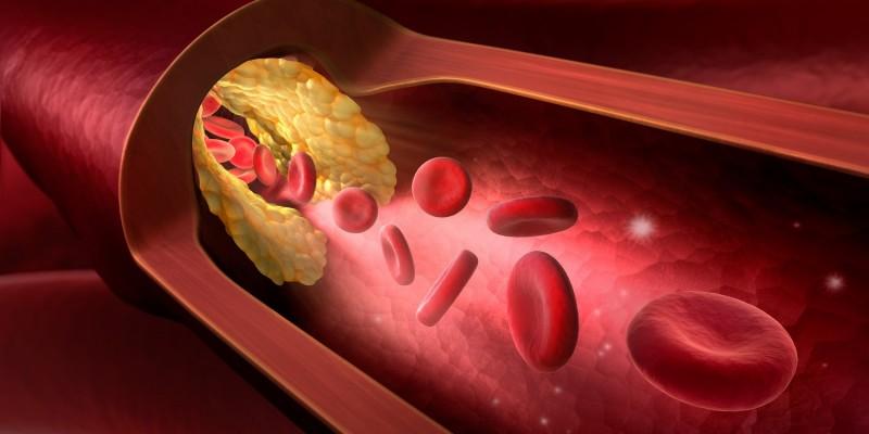 Arterie mit Ablagerungen