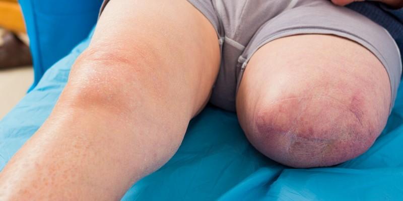 Bein mit amputiertem Unterschenkel