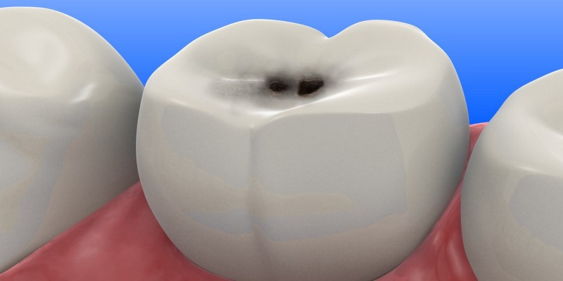 Kariöser Zahn