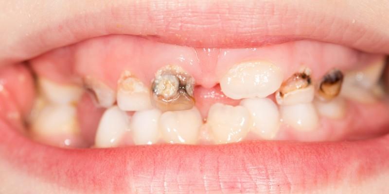 Zahnverfärbungen durch Karies und mangelnde Zahnhygiene