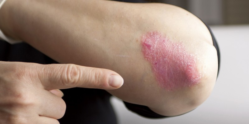 Hautverdickung bei Schuppenflechte