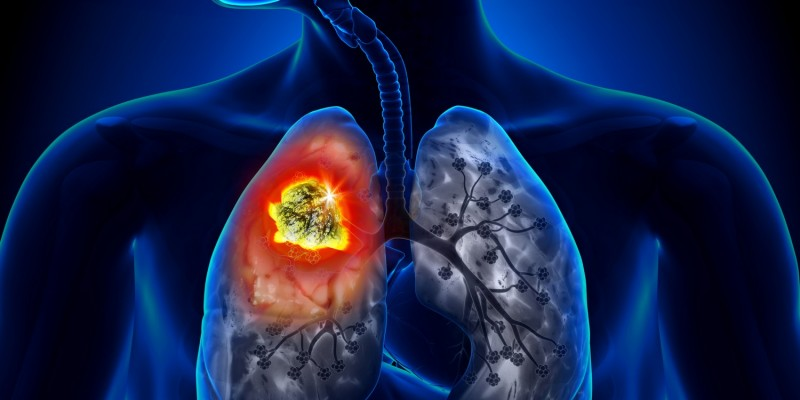 Lungenkrebs kann die Ursache für Bluthusten sein