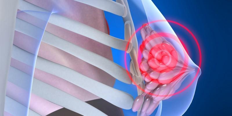 Die Ursache der Schmerzen kann im Brustdrüsengewebe liegen