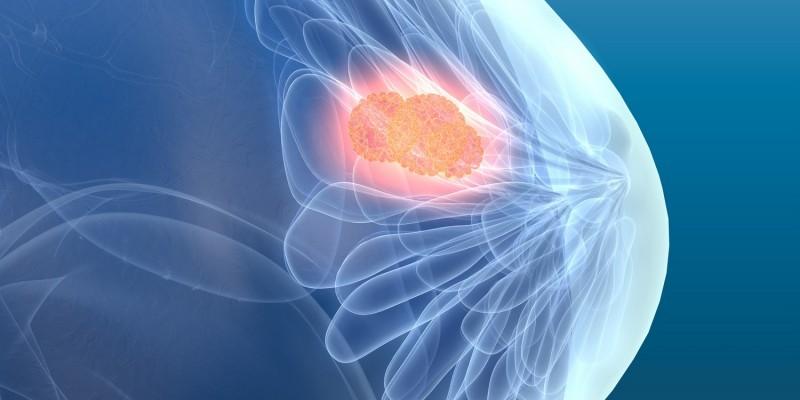 Brustkrebs kann für die Mastalgie verantwortlich sein