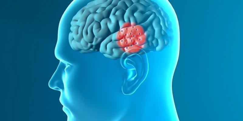 Betroffene Gehirnregion bei Parkinson
