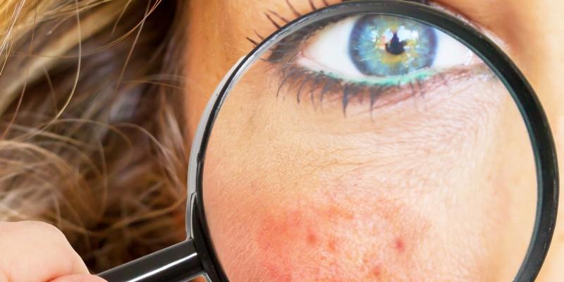 Hautrötung im Gesicht