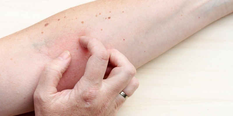 Oft geht die Hautverdünnung mit Juckreiz einher