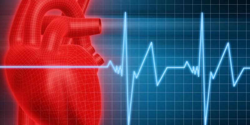 Oft steckt eine Herzrhythmusstörung dahinter