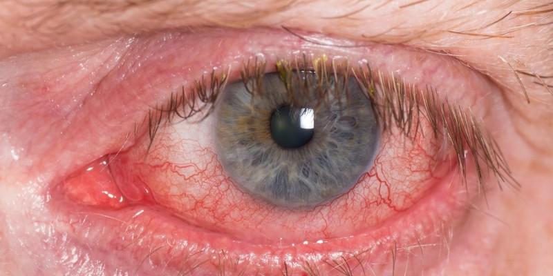 Das Auge ist deutlich gerötet
