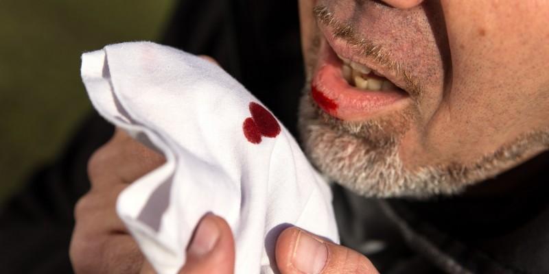 Mann mit Bluthusten