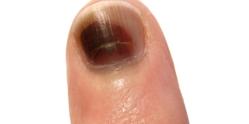 Schwarzer Fingernagel