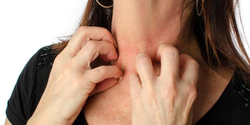 Gerötete Haut am Hals