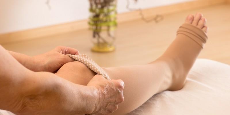 Ödeme können u.a. bei einer Beinvenenthrombose auftreten